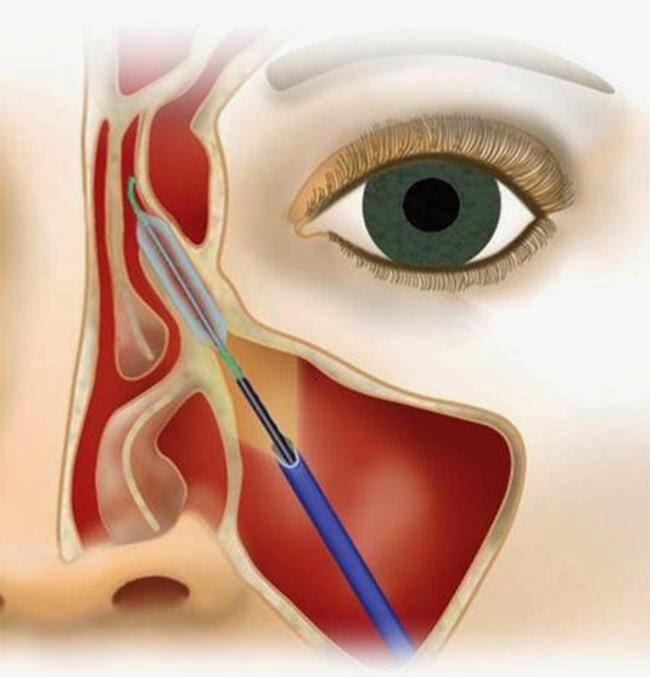 4 Obat Herbal Sinusitis Manjur