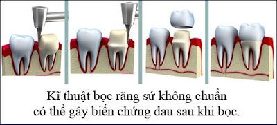 sau khi bọc răng sứ bị đau nhức là do đâu -4