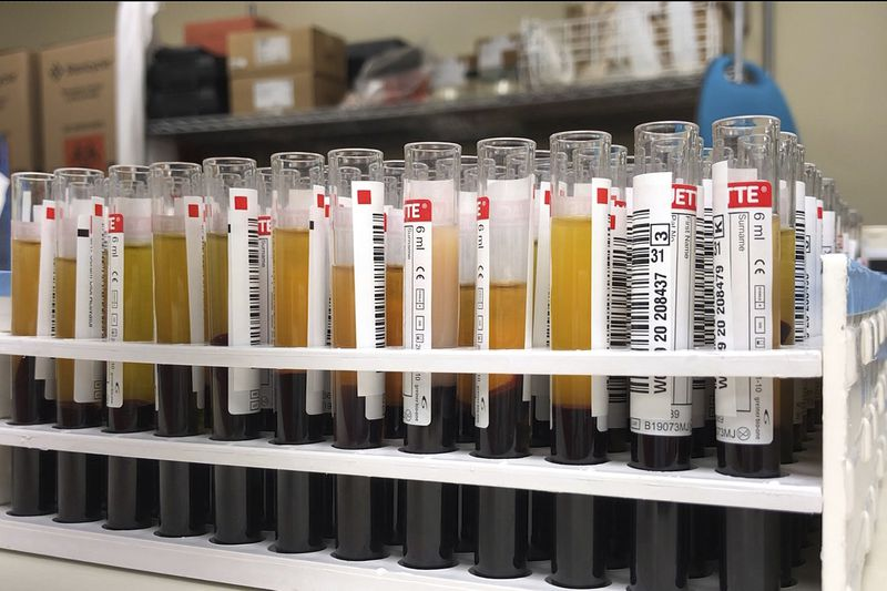 El tipo de sangre podría estar relacionado con la gravedad de las infecciones por coronavirus, dicen nuevos estudios