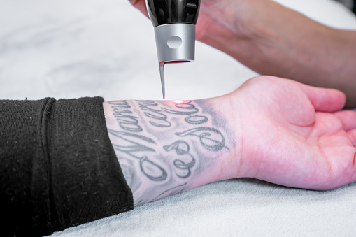 is Tattoo Removal A Profitable Business