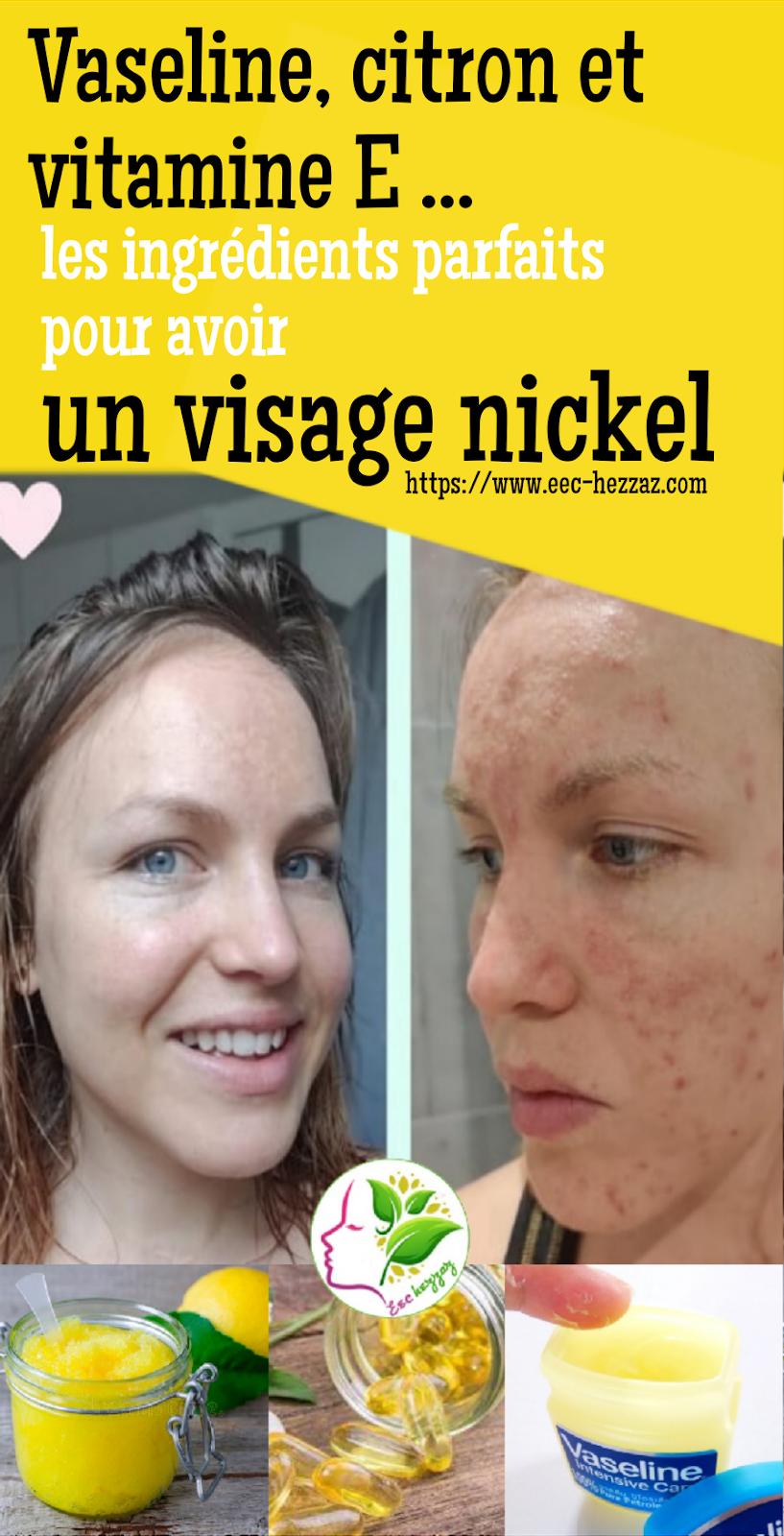Vaseline, citron et vitamine E ... les ingrédients parfaits pour avoir un visage nickel