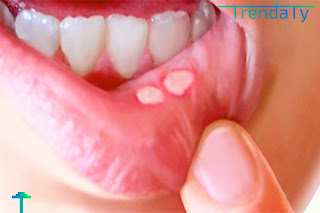 اعرف أسباب الحساسية داخل الفم وأعراض حساسية الفم واهم طرق علاج حساسية الفم بالاعشاب، وصفات منزلية لعلاج حساسية الفم.