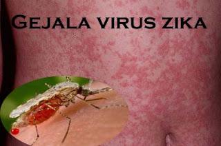 Tanda-Tanda Gejala Virus Zika