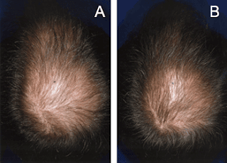 minoxil, minoxidil al 5, minoxidil calvicie, minoxidil cabello