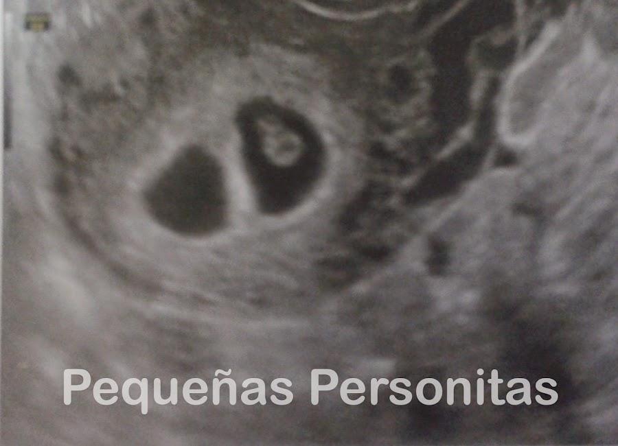 Embarazo gemelar con una pérdida gestacional