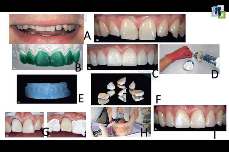 ترميم الأسنان الأمامية باستخدام الكومبوزت المحقون