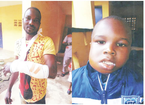 NSCDC accused of shielding officers who attacked man and son