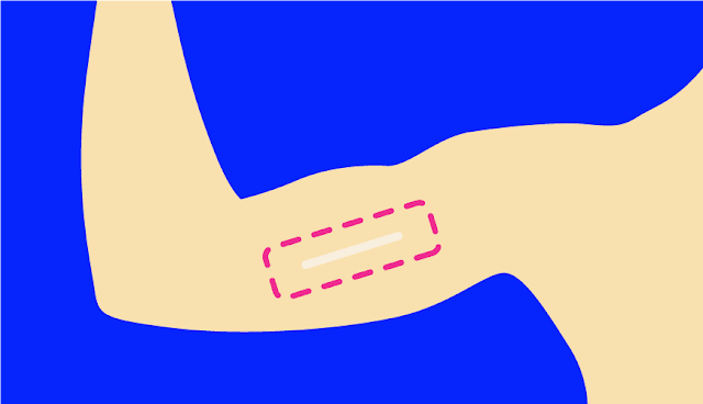 How Does the Subcutaneous Bar Implant Affect