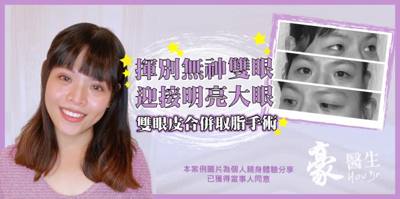 【素人分享】雙眼皮合併取脂手術