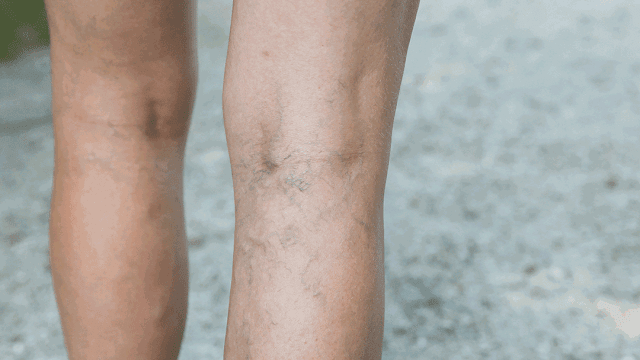 Deep Vein Thrombosis Symptoms, Treatments,Causes and risk factors