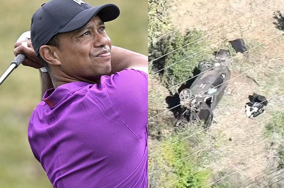 Golf legend, Tiger Woods hospitalized with 'multiple leg injuries' after single-vehicle accident in Los Angeles