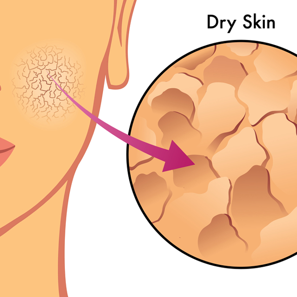 drawing of part of a woman's face indicating what dry skin looks like