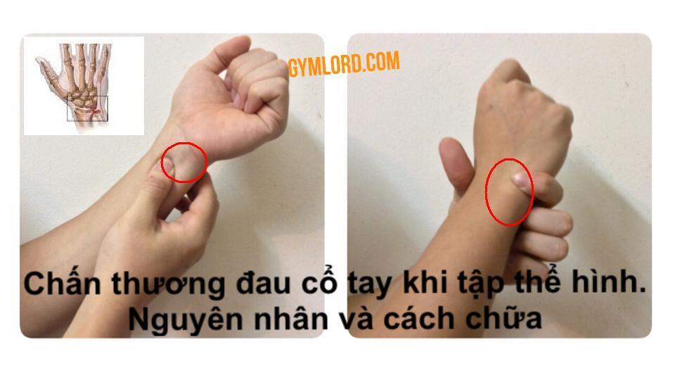 Chấn thương cổ tay