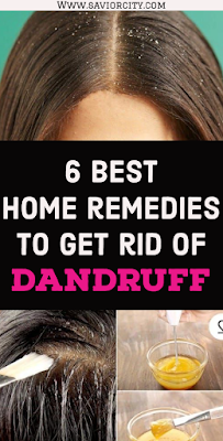 6 best home remedies to get rid of dandruff