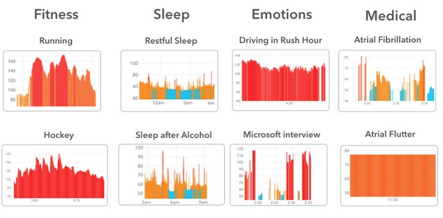 Heart rate data reflects everything that happens in your life. Examples from Cardiogram for Apple Watch.