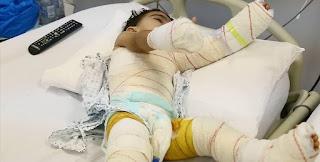 كانت تزعجها كثيرا … أم تُعذب طفلة الـ3 سنوات بالماء الساخن حتى الموت ..!!!