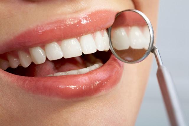 3 Cara Membersihkan Karang Gigi Untuk Anda Berita Hari Ini