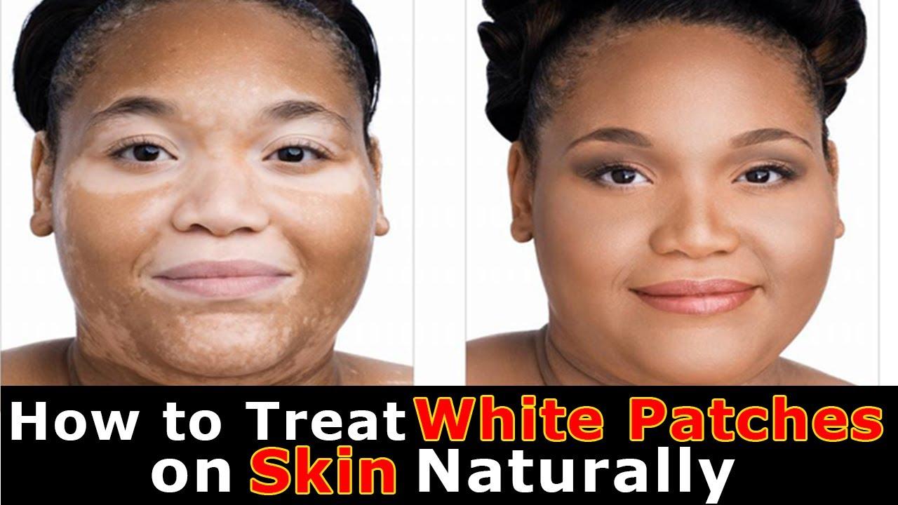 hpv causes vitiligo