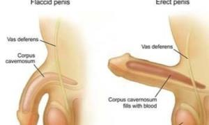 Terminate Male Erectile Dysfunction (ED) Permanently