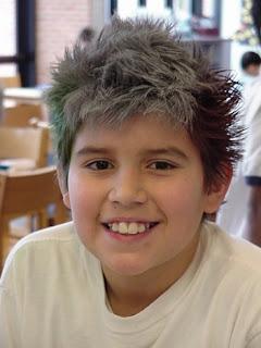 Lý do khiến trẻ bị tóc bạc sớm