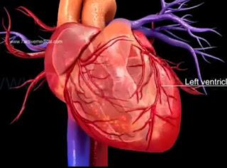 Bagaimana Cara menolong orang yang kena serangan jantung tiba tiba