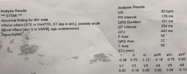 Dr Smith S Ecg Blog Chest Pain Resolved And A Quot Normal