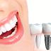 كيف تتم عملية زراعة الاسنان ، كم التكلفة وافضل مركز