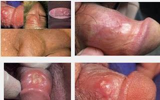 Obat Alami Untuk Penyakit Sifilis