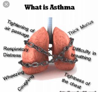 Diagram of Asthma