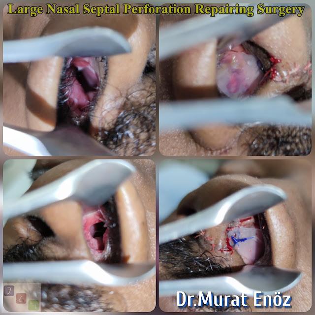 nasal septal hole closure,repairing of  septum perforation, septum perforation surgery in istanbul