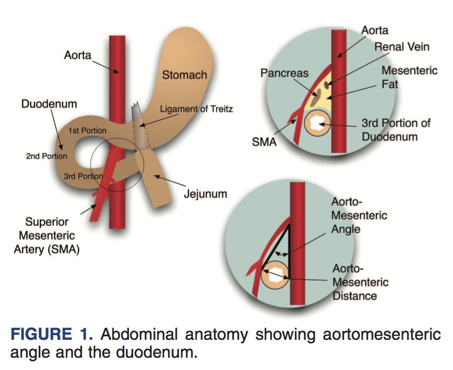 上腸間膜動脈症候群の2例 - J-STAGE Home