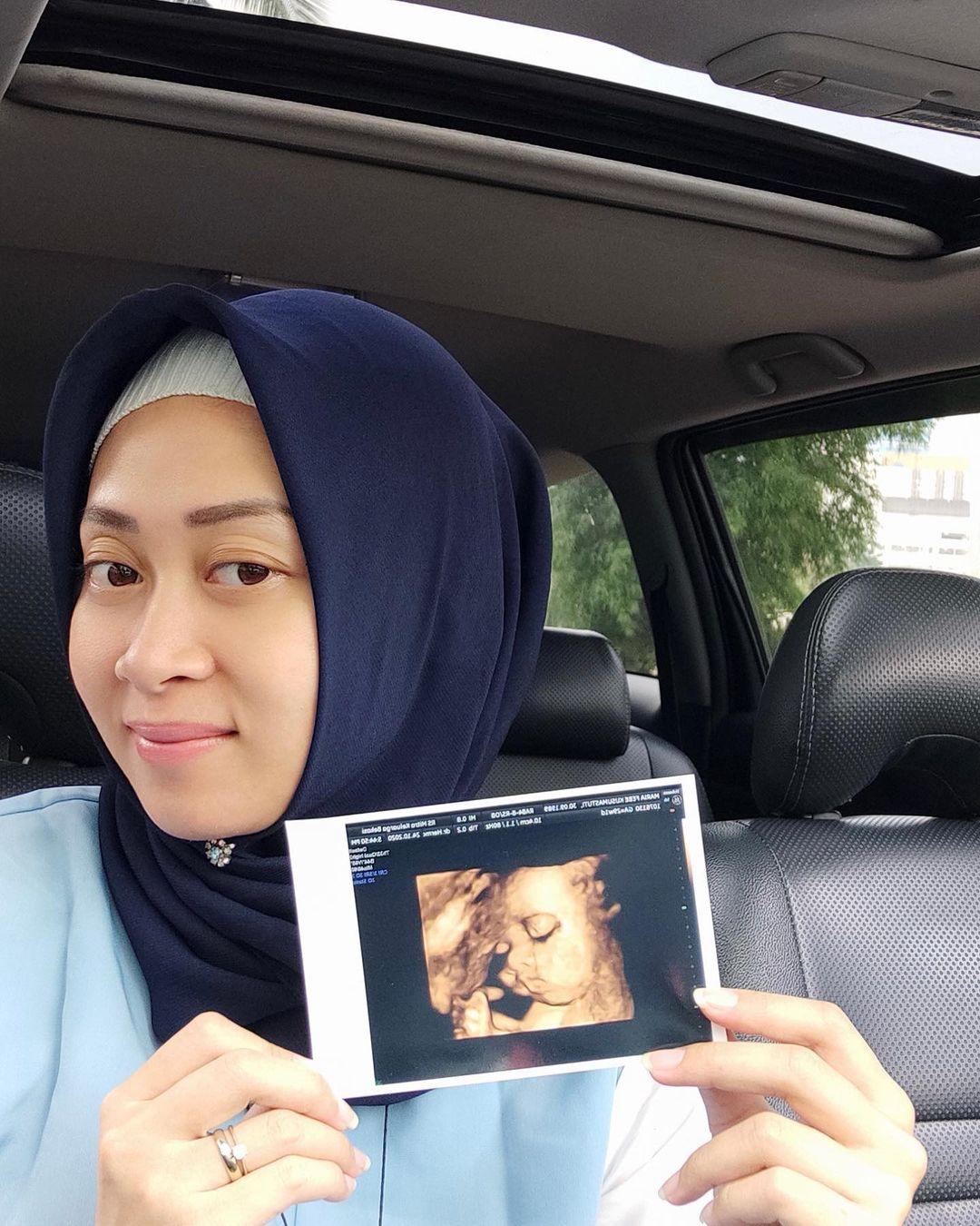 Gara-gara Azan, Eks Tunggal Putri Indonesia Ini Tinggalkan Kristen dan Pilih Islam