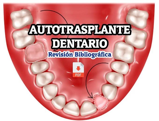 PDF: Autotrasplante dentario. Revisión Bibliográfica
