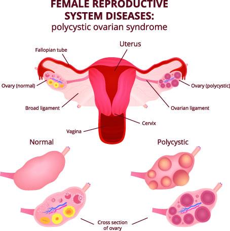PCOS Pregnancy