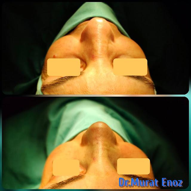 rhinoplasty,Nose Job in Istanbul,Nose aesthetic,