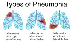 Types of Pneumonia Chart Diagram