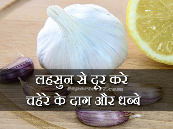 Garlic can help reduce Pimple Marks