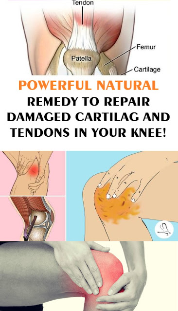 This Amazing Recipe Can Relieve Knee, Bone And Joint Pain