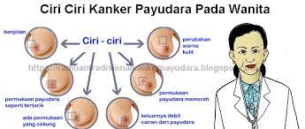 Ciri Ciri Kanker Gambar Kanker Payudara Stadium Awal Sampai Akhir ...