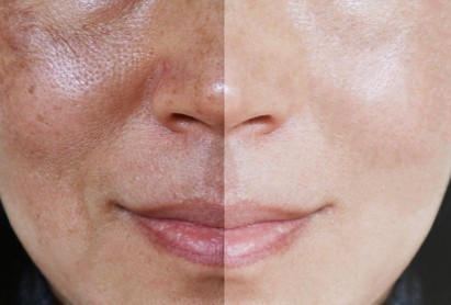 Manfaat rumput teki untuk menghilangkan flek hitam pada wajah