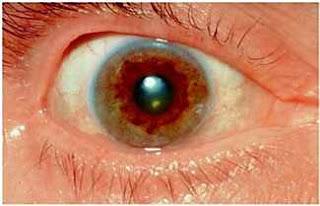 wilson hastalığı Keiser Fleischer halkası