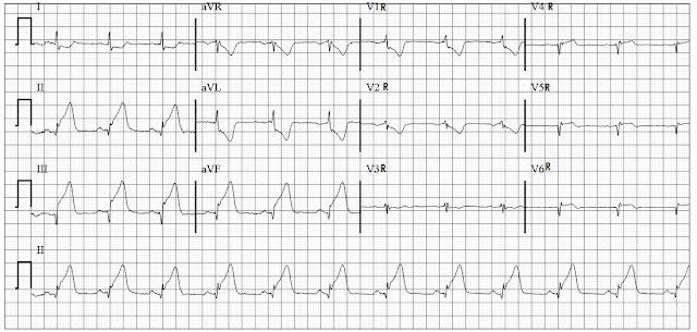 ECG of Acute Infero posterior wall MI with RV involvement
