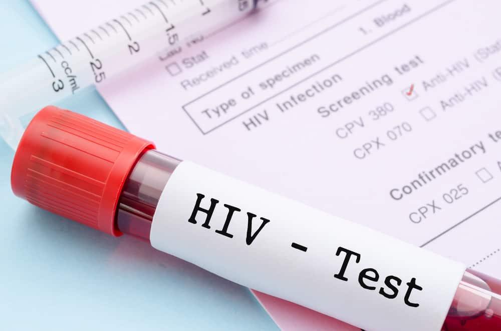 Apakah Test HIV/AIDS Sekarang Ini Akurat?