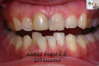 На фото случай скученного положения зубов