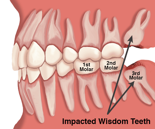 Impacted Wisdom Teeth: Oral Surgery and Extraction