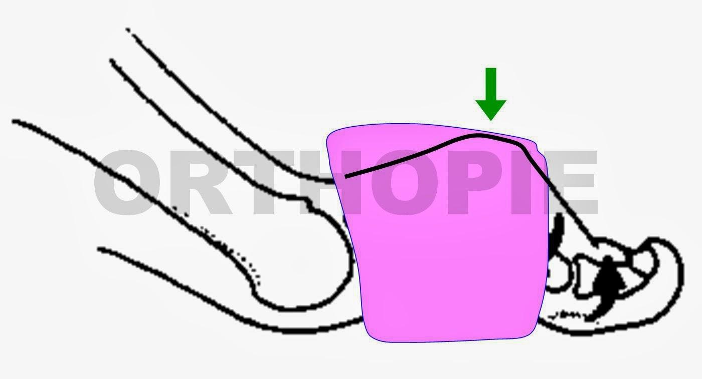 Biomecanica y ortopedia del pie