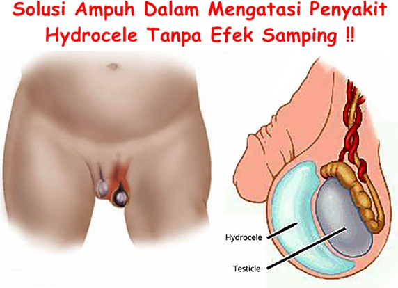 Obat Tradisional Hydrocele