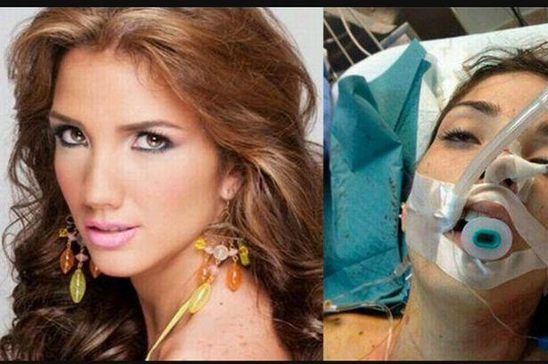 Genesis Carmona ratu kecantikan yang tewas mengenaskan