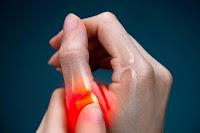 أعراض التهاب المفاصل الروماتويدي