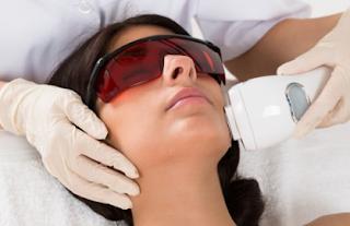 Penghilang Laser Rambut Belakang